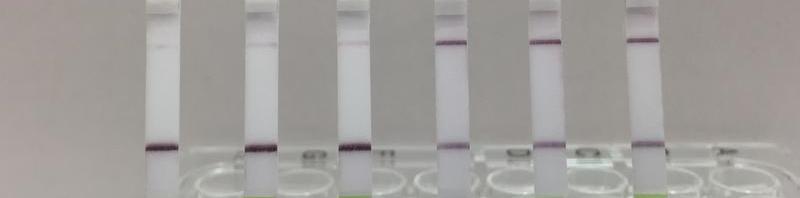 Infektionen und Abstoßungen nach Nierentransplantation schneller entdecken